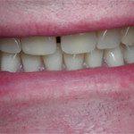oralimplant10