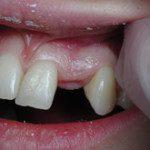 oralimplant12