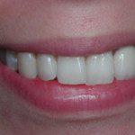 oralimplant13