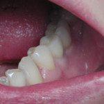 oralimplant14