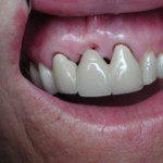 oralimplant7