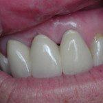 oralimplant8