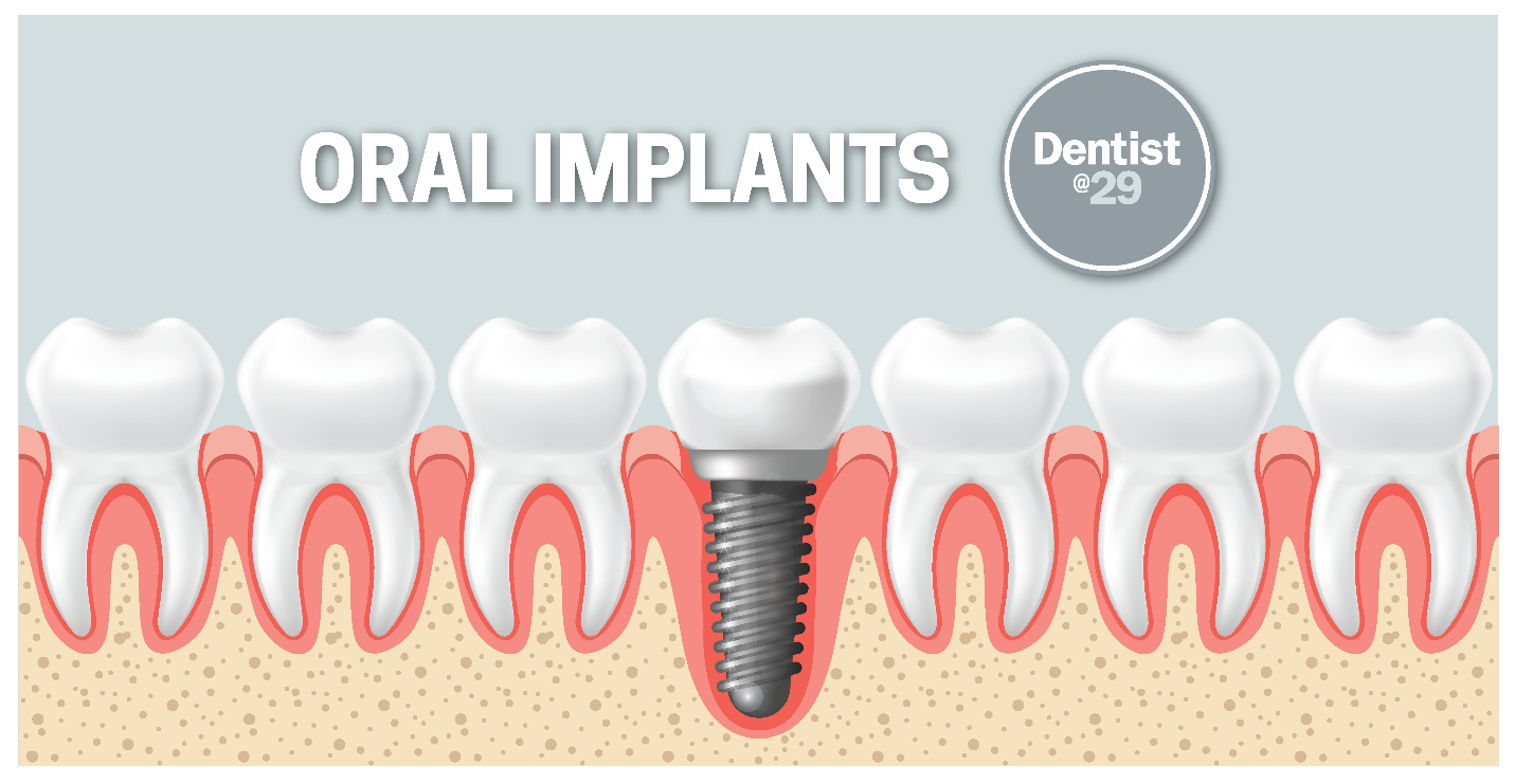 REASONS WHY YOU MAY CONSIDER ORAL IMPLANTS