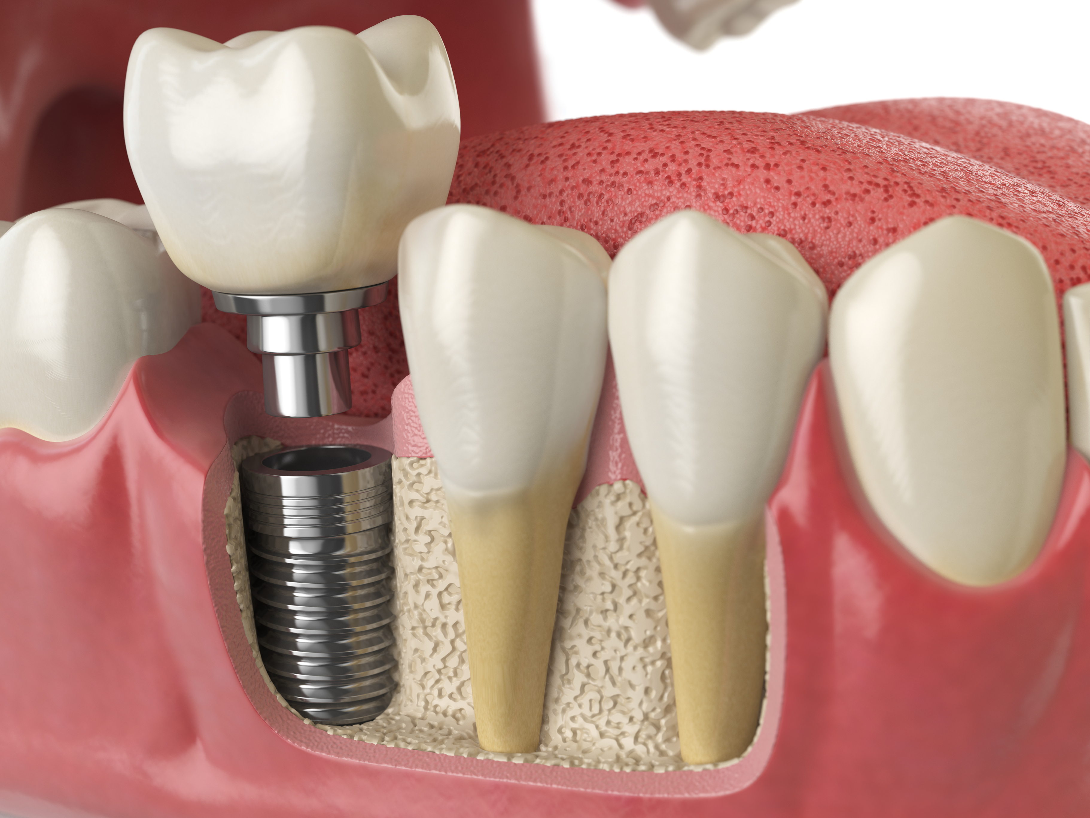 How do dental implants work with your existing teeth?