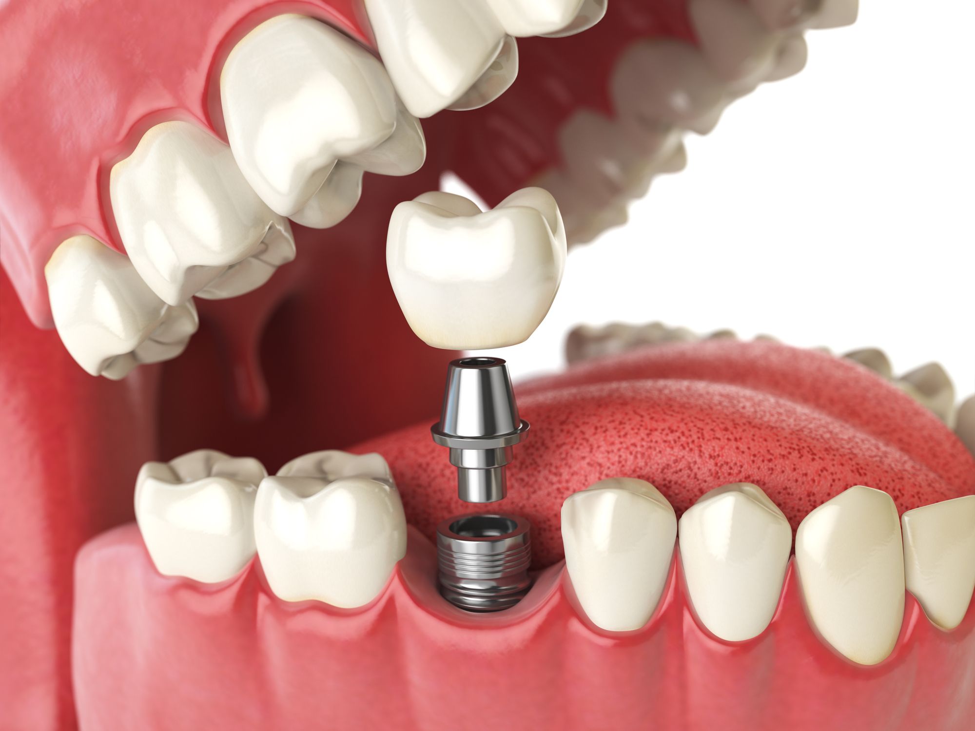 Implant Dentist in Cheshire