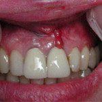 oralimplant1